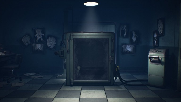 Little Nightmares II Hospital Walkthrough Guide – Mono and Six playing with the X-ray